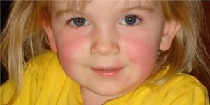 Scarlattina incubazione: le fasi iniziali della malattia