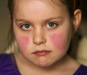 Scarlattina: adulti e bambini, come curarli?