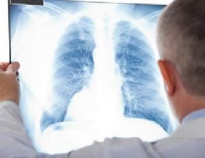 polmonite-varicellosa